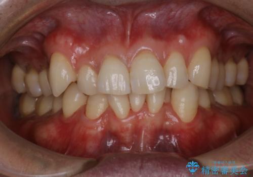 1日で着色を除去し綺麗な歯にの治療後