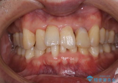 歯周病の治療前にまずはモチベーションUPにPMTCでステインの除去の治療前