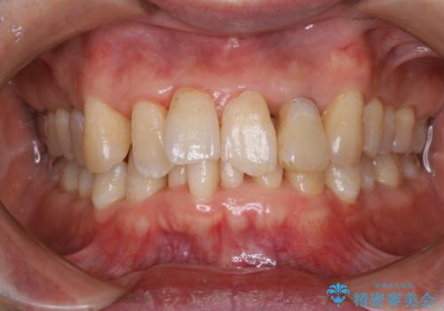 歯周病の治療前にまずはモチベーションUPにPMTCでステインの除去の治療後