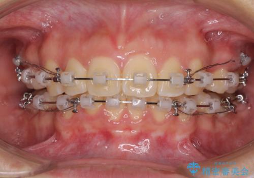 部分矯正で出っ歯になった 出っ歯改善の抜歯矯正の治療中