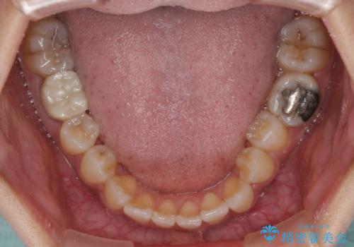 幅の狭い上顎歯列 骨幅を拡大する矯正治療の治療前
