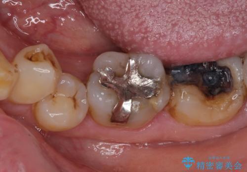 銀歯や虫歯を治したい ゴールドインレーによるむし歯治療の治療前