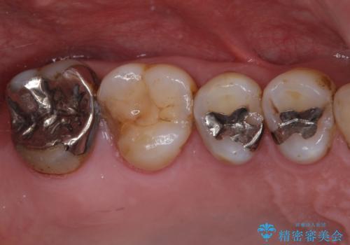 銀歯や虫歯を治したい ゴールドインレーによるむし歯治療の症例 治療前
