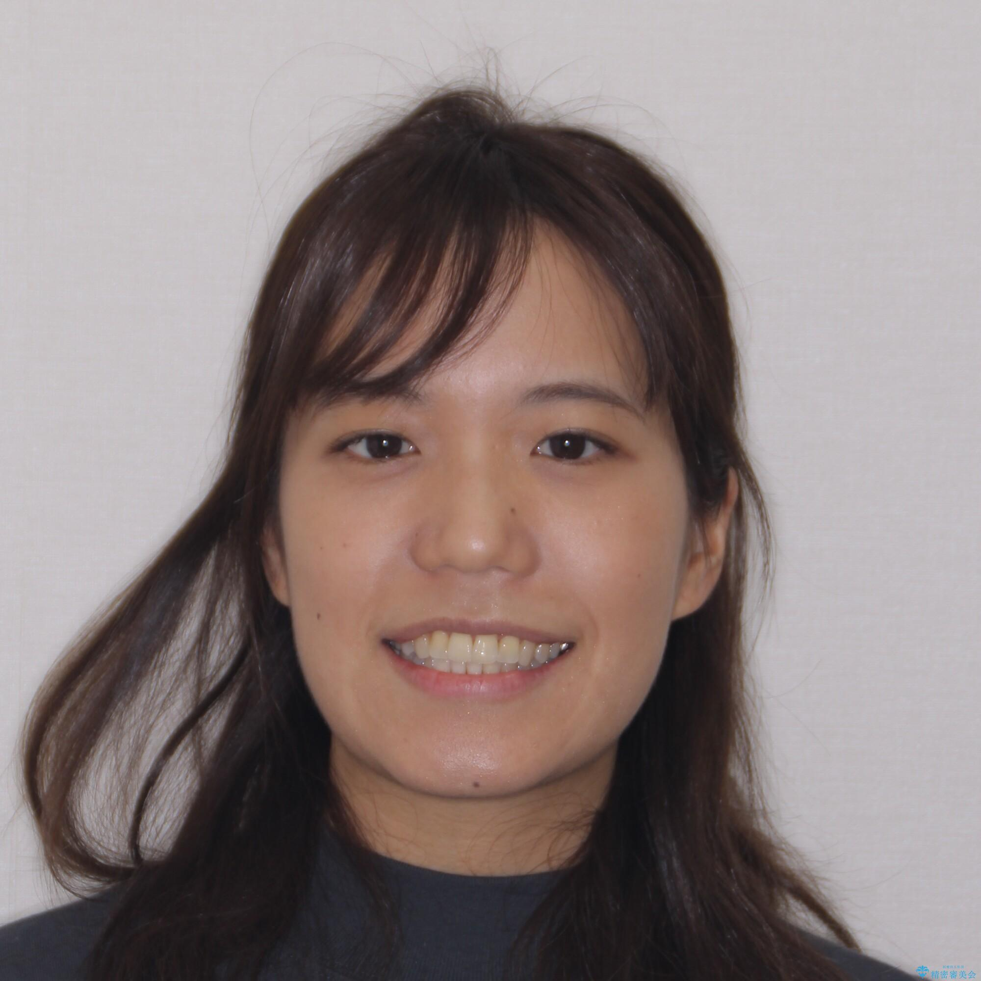 【モニター】幅の狭い上顎歯列 骨幅を拡大する矯正治療の治療後(顔貌)