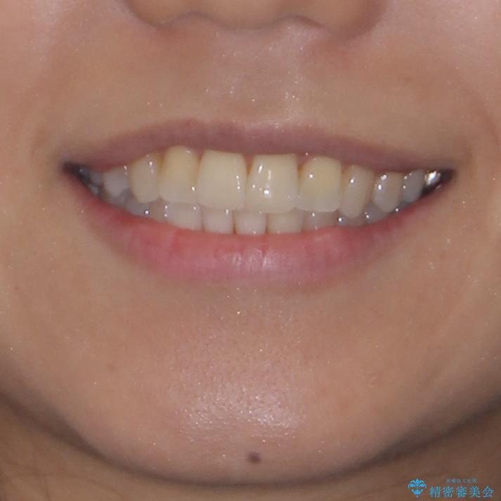 幅の狭い上顎歯列 骨幅を拡大する矯正治療の治療後(顔貌)
