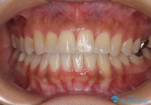 幅の狭い上顎歯列 骨幅を拡大する矯正治療の治療後