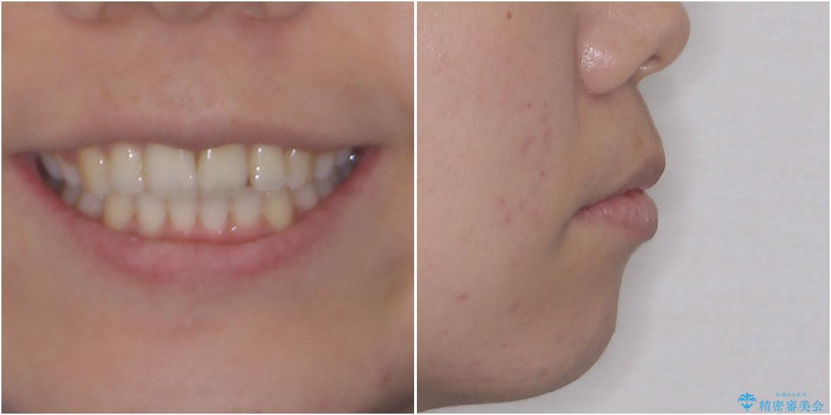 口元をスッキリと ワイヤー装置による抜歯矯正の治療後(顔貌)