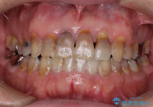 上顎の狭窄歯列 インビザラインによる拡大矯正の治療後