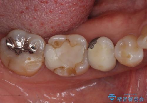 欠けてしまった奥歯 セラミッククラウンによる補綴治療の治療前