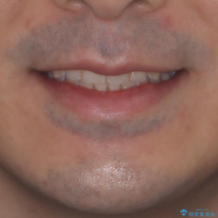 ディープバイトと叢生を解消 インビザライン矯正の治療後(顔貌)