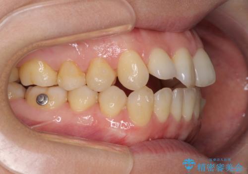前歯の叢生とオープンバイト インビザラインでの矯正治療の治療中