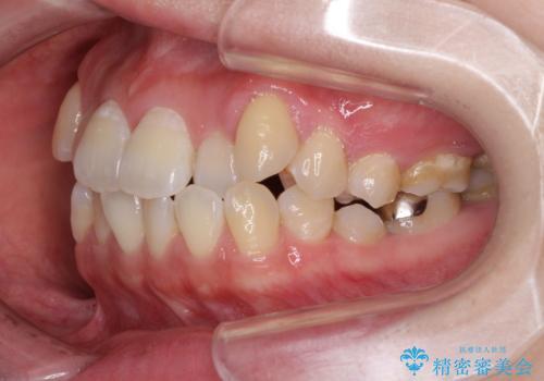 口元の突出感を改善 インビザラインによる非抜歯矯正の治療前