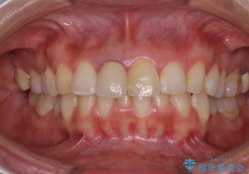 目立つ前歯の詰め物 オーダーメイドのセラミッククラウンで審美的に仕上げるの治療前
