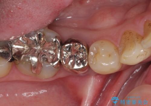 穴を開けられ抜歯となった奥歯 セラミックブリッジによる補綴治療の治療前