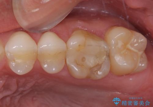 奥歯の詰め物が取れた 継ぎ接ぎだらけの詰め物をゴールドインレーにの治療前