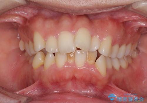 口元をスッキリと ワイヤー装置による抜歯矯正の治療前