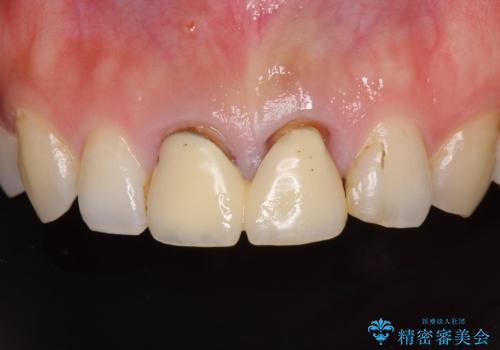 変色した前歯のクラウン オールセラミッククラウンにより審美歯科治療の治療前