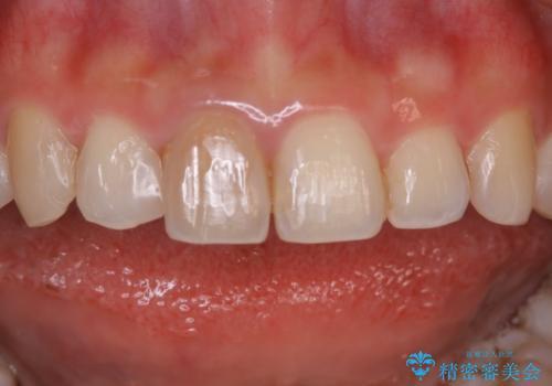 前歯1本だけ色が違う:他の歯となじむ被せ物で自然な仕上がりにの治療前