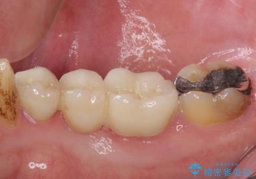 穴を開けられ抜歯となった奥歯 セラミックブリッジによる補綴治療の治療後