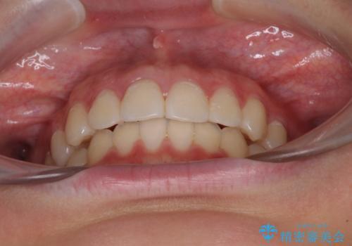 前歯のデコボコを改善 インビザライン矯正の治療後