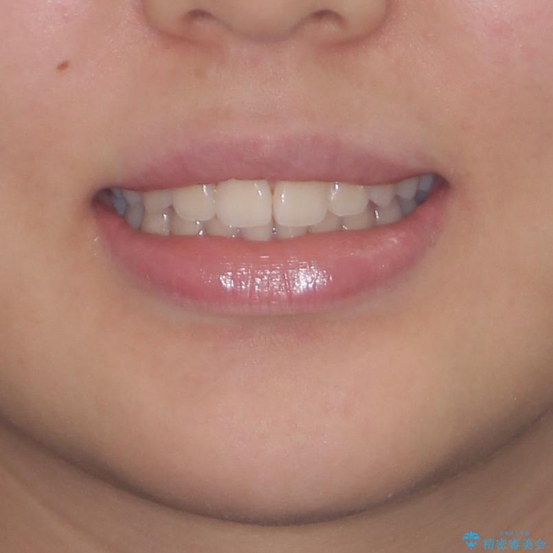前歯のデコボコを改善 インビザライン矯正の治療後(顔貌)