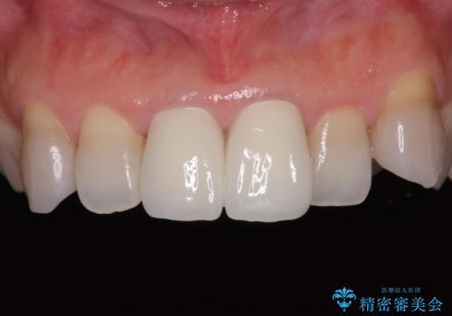 変色した前歯 オールセラミッククラウンにより審美歯科治療の治療後