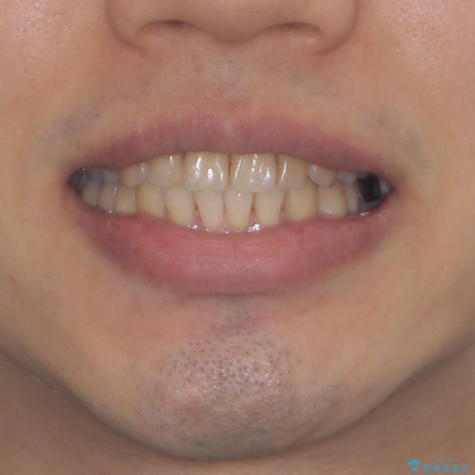 前歯のデコボコと下顎の八重歯 インビザラインによる矯正治療の治療後(顔貌)