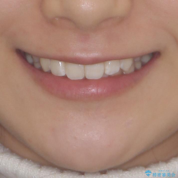 上下前歯の叢生をインビザラインできれいにの治療後(顔貌)