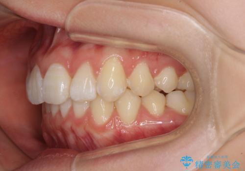 上下前歯の叢生をインビザラインできれいにの治療後