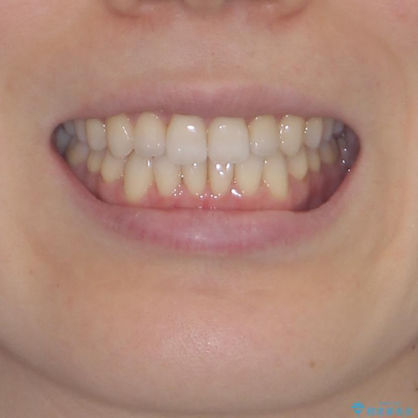 前歯の叢生とオープンバイト インビザラインでの矯正治療の治療後(顔貌)