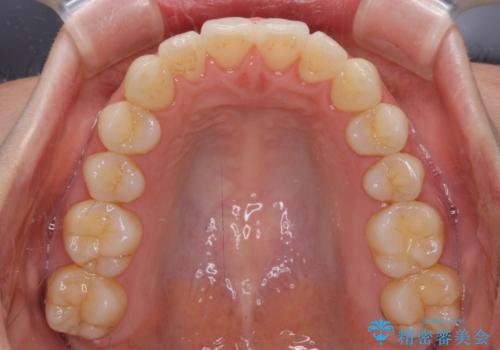 前歯の叢生とオープンバイト インビザラインでの矯正治療の治療後