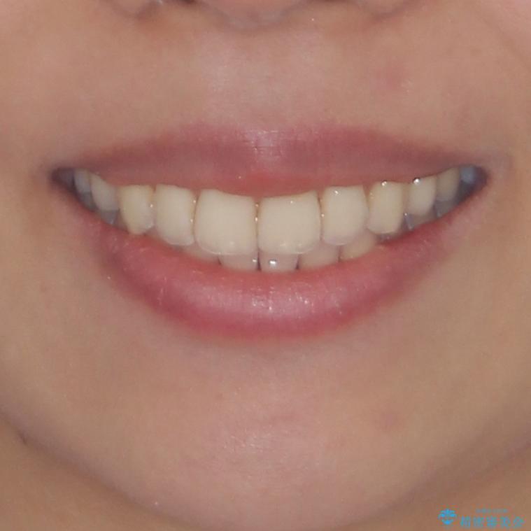 八重歯の再矯正 インビザラインでストレスなく矯正治療の治療後(顔貌)