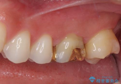 奥歯の詰め物が取れた 継ぎ接ぎだらけの詰め物をゴールドインレーにの治療後