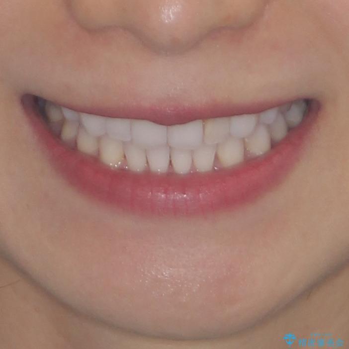 軽度の叢生をインビザライン・ライトで解消の治療後(顔貌)