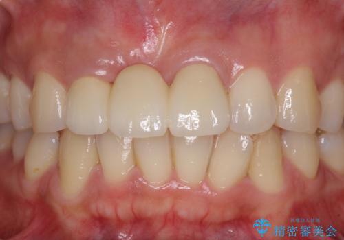 治療途中で放置した前歯 オールセラミックブリッジの治療後