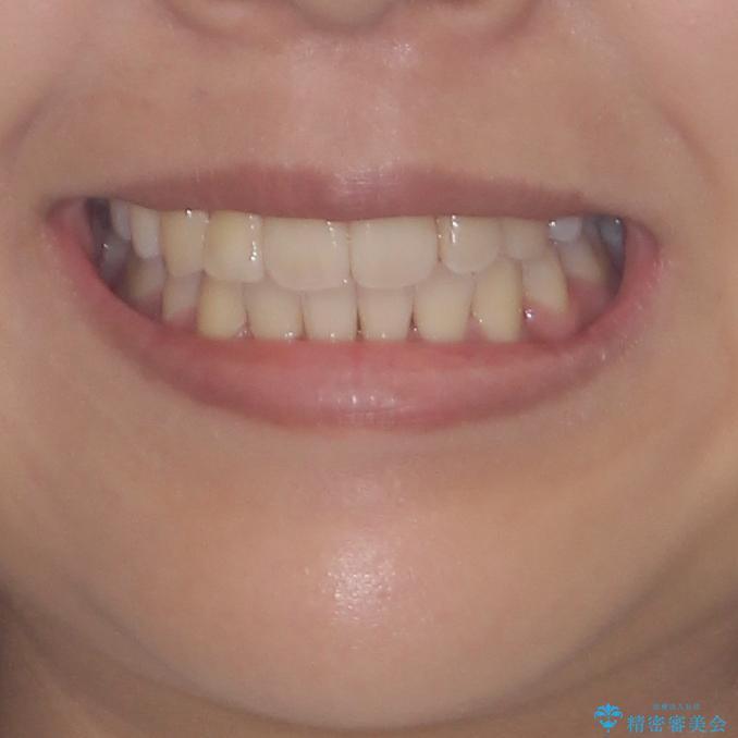 前歯の正中のズレを改善 目立たないワイヤー装置での抜歯矯正の治療後(顔貌)