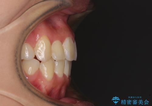 前歯の正中のズレを改善 目立たないワイヤー装置での抜歯矯正の治療後