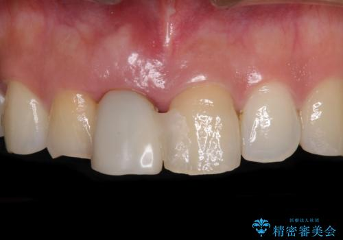 治療途中で放置した前歯 オールセラミックブリッジの治療前