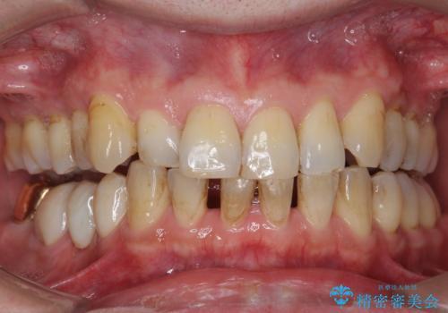 オフィスホワイトニングで歯の色を、白く口元を明るく爽やかに!の治療前
