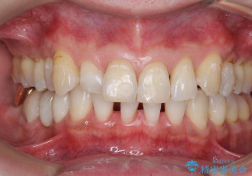 オフィスホワイトニングで歯の色を、白く口元を明るく爽やかに!の治療後