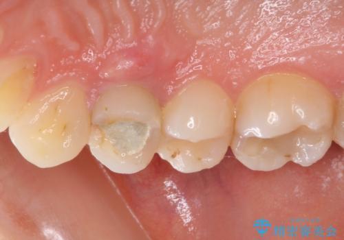 深い虫歯の歯を抜歯 目立つ小臼歯のインプラント治療の治療前
