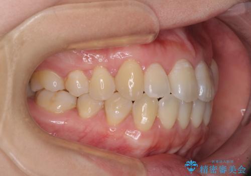 口元の突出感を改善 インビザラインによる非抜歯矯正の治療後
