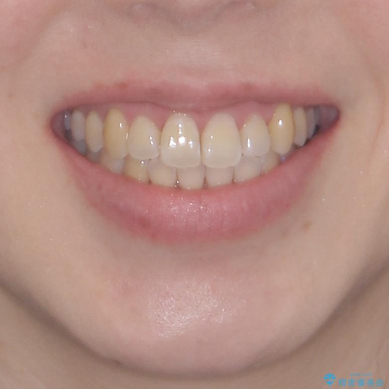 口元の突出感を改善 インビザラインによる非抜歯矯正の治療後(顔貌)
