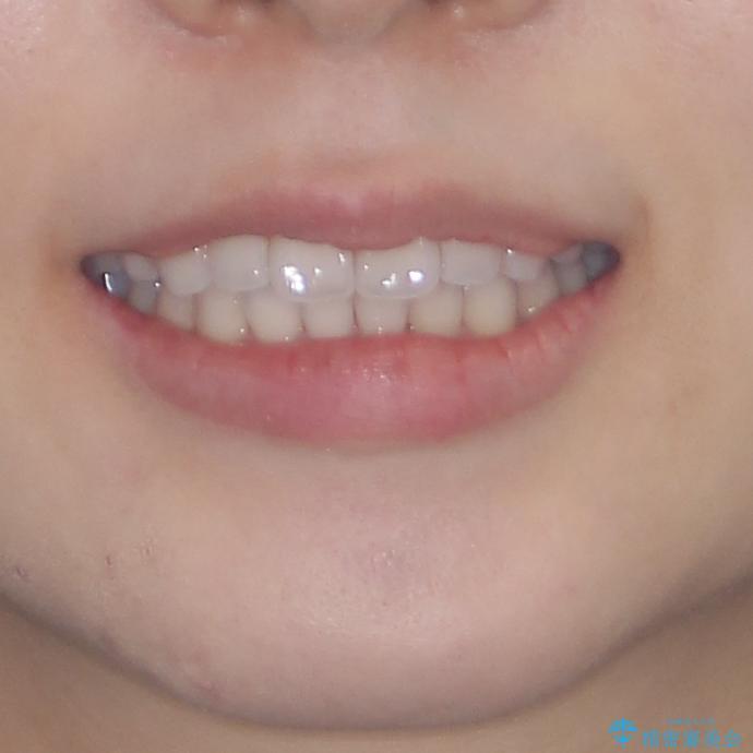 インビザライン・ライトにより後戻りの再矯正の治療後(顔貌)