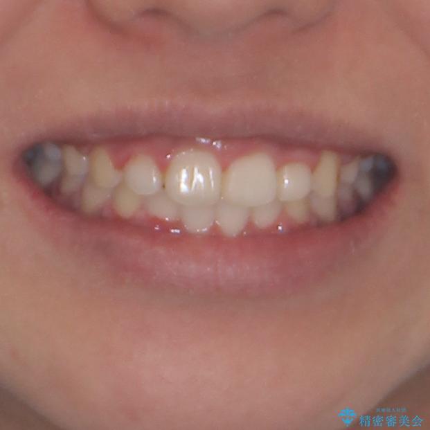 インビザラインが続けられない ワイヤー装置での矯正治療の治療後(顔貌)