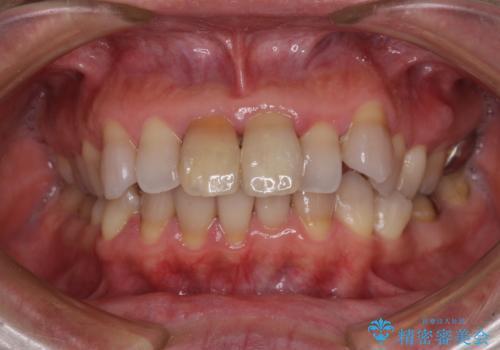 変色した前歯 オールセラミッククラウンにより審美歯科治療の治療前