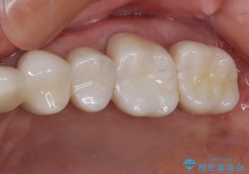 歯肉が腫れて出血する 奥歯の歯周病治療の治療後