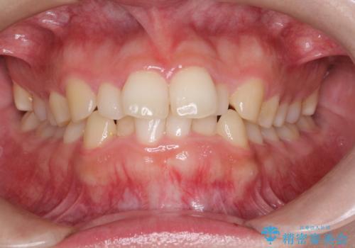 インビザラインでの前歯のガタガタの矯正の治療前