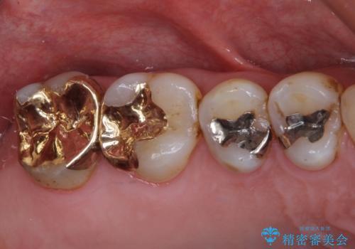 銀歯や虫歯を治したい ゴールドインレーによるむし歯治療の症例 治療後