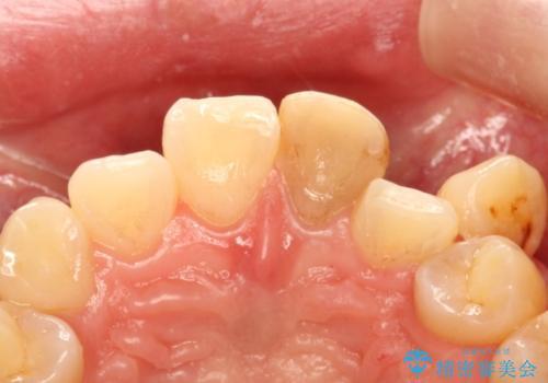 前歯を綺麗にしたい オールセラミッククラウンの治療前